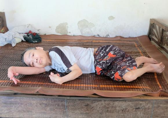 Người đàn ông bị khuyết tật đặc biệt nặng, liệt tứ chi được xã cho thoát nghèo - Ảnh 1.